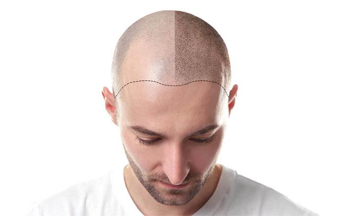 کلینیک سینا - کاشت مو
