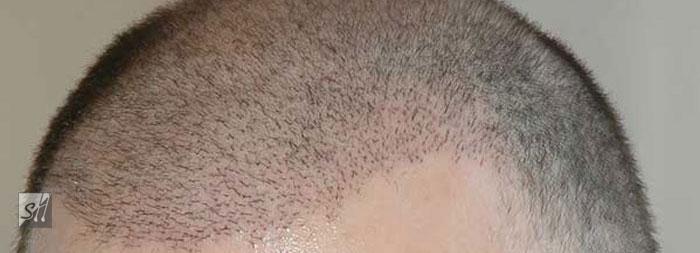 کاشت موی سینا